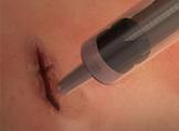 MeTro Cerrahi Yapıştırıcı