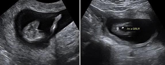 13 Haftalık Kız Bebek Ultrason Görüntüsü