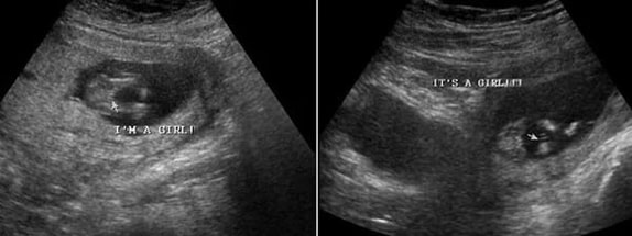 14 Haftalık Kız Bebek Ultrason Görüntüsü