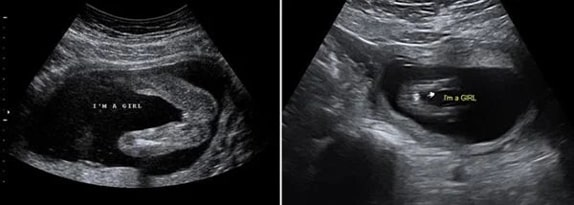 17 Haftalık Kız Bebek Ultrason Görüntüsü