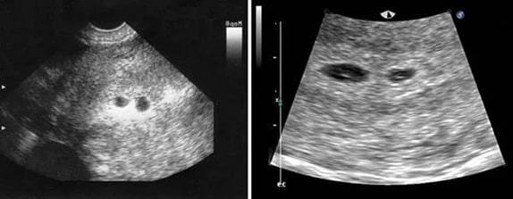 2 Haftalık İkiz Gebelik Ultrason Görüntüleri