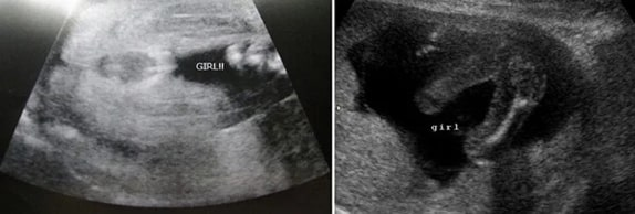29 Haftalık Kız Bebek Ultrason Görüntüsü