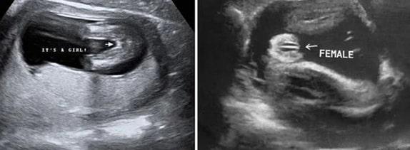 34 Haftalık Kız Bebek Ultrason Görüntüsü