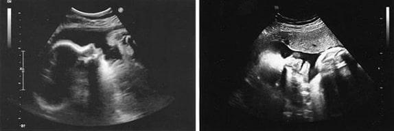 35 Haftalık Gebelik Ultrason Görüntüleri