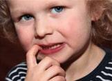 Çocuklarda Tırnak Yeme Sebebi ve Tedavisi