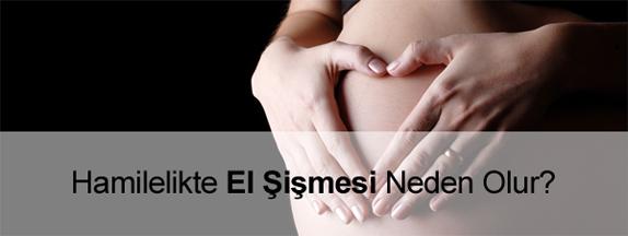 Hamilelikte (Gebelikte) El Şişmesi (Ödem) Neden Olur?