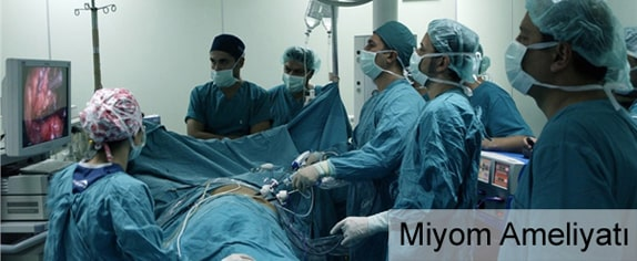 Miyom Çıkarılma Ameliyatı (Myomektomi) Nedir?