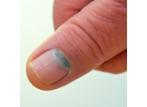 Mavi Tırnak Hastalığı Nedir?